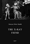 The X-Rays